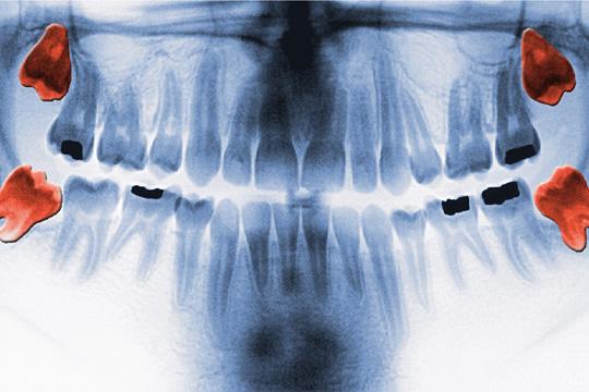 Dental x-ray result